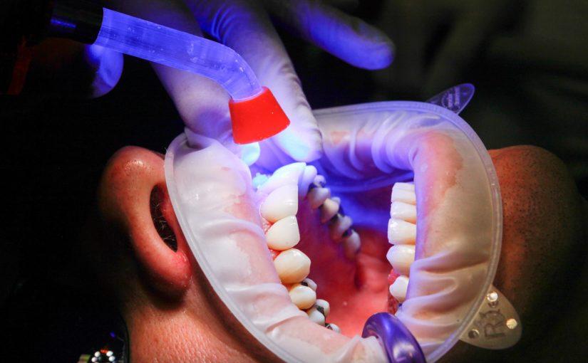 Zła sposób żywienia się to większe deficyty w zębach a także ich brak